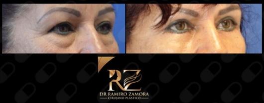 Ramiro Zamora Rodríguez  - Multimedia