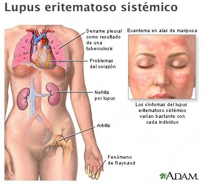Esteban Meza Zempoaltecatl - Galería de imágenes