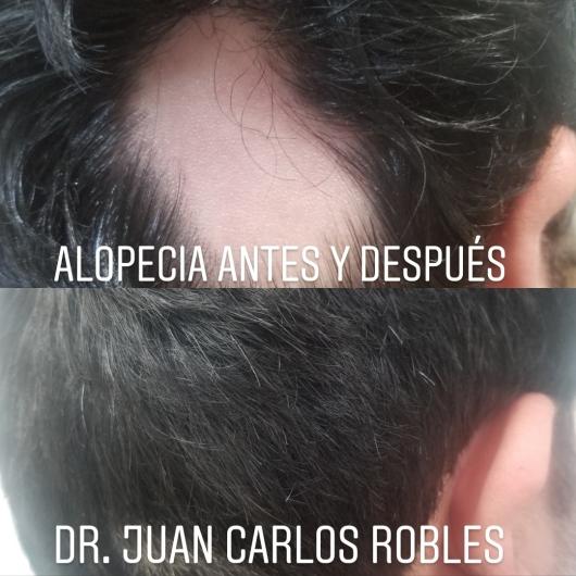 Juan Carlos Robles Méndez - Multimedia