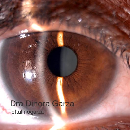 Dinora Garza Leal - Galería de imágenes