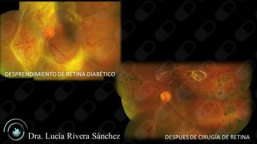 Lucía Rivera Sánchez - Multimedia