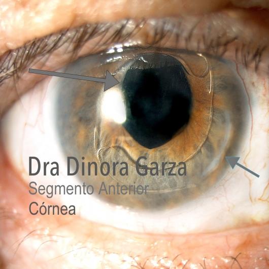 Dinora Garza Leal  - Multimedia