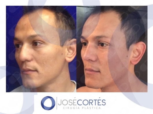 José Cortés Arreguin - Galería de imágenes