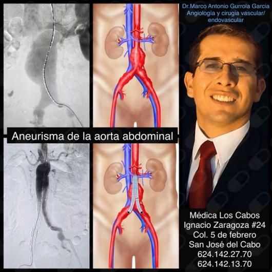 Marco Antonio Gurrola García - Galería de imágenes