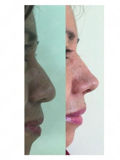 Perla Becerril Ramírez - Galería de imágenes