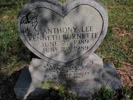 BURNETTE, ANTHONY LEE KENNETH - Knox County, Tennessee | ANTHONY LEE KENNETH BURNETTE - Tennessee Gravestone Photos