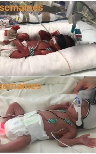 Eleonore prematuree C Hu Sainte Justine naissance
