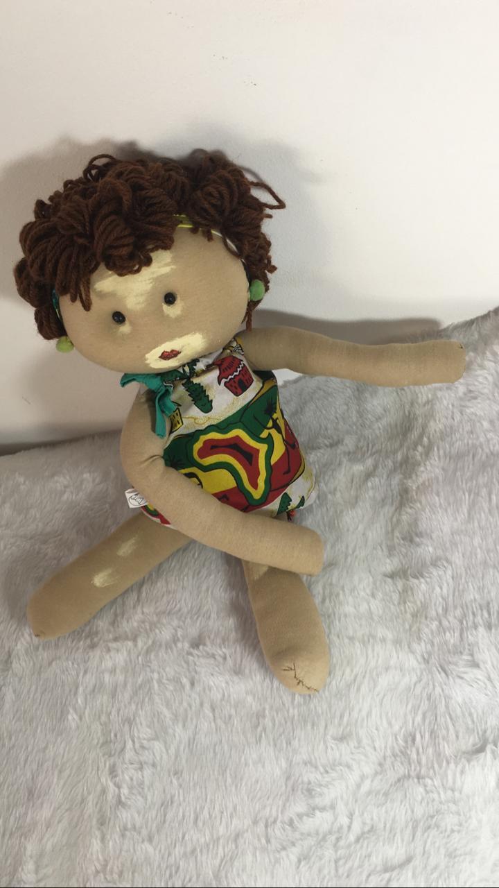 Boneca Inclusiva Vitiligo