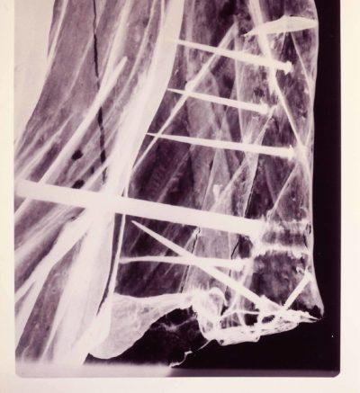 Figurehead x-ray scans