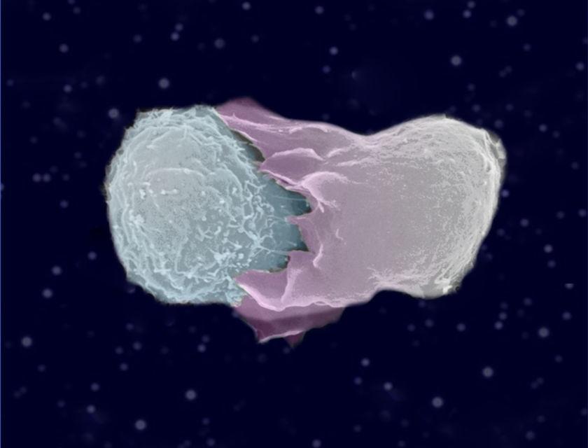 Synapse photo 1 5x