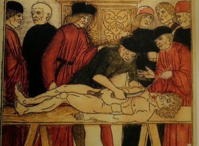 MONDINO DE LUZZI ( 1275- 1326)