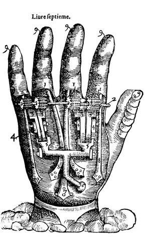 Primer brazo artificial móvil al nivel del codo.