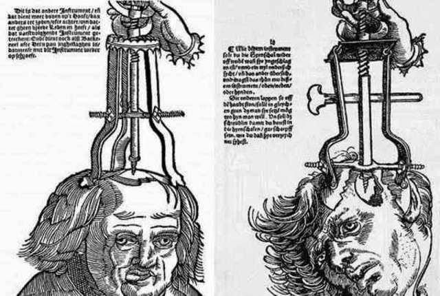 Trepanación ((Von Hopffgarten, Anna, revista mente y cerebro No. 73)