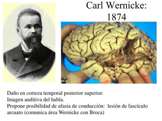 """Karl Wernicke """"Teoría de la Función Cerebral"""""""