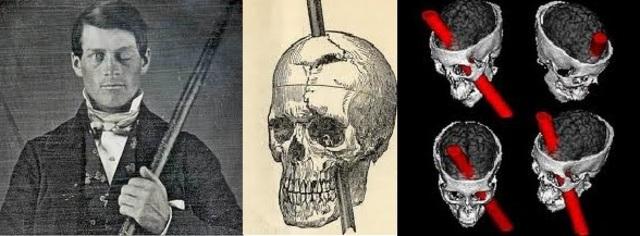 Phineas Gage y el enigma del córtex prefrontal (Elsevier.es - A. garcía-Molina - 2012)
