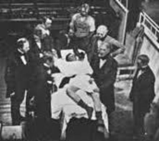 Primera operación con anestesia