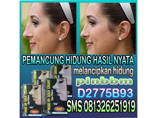 Obat Perbaikan Tulang Hidung supaya mancung Nose up Gold Cream Super Platinun - 1/3
