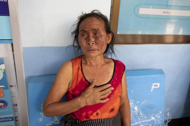 An injured Karen villager from Myanmar rests at Ban Mae Sam Laep Health Center in northern Thailand on Tuesday after crossing the Salawin River on a boat.
