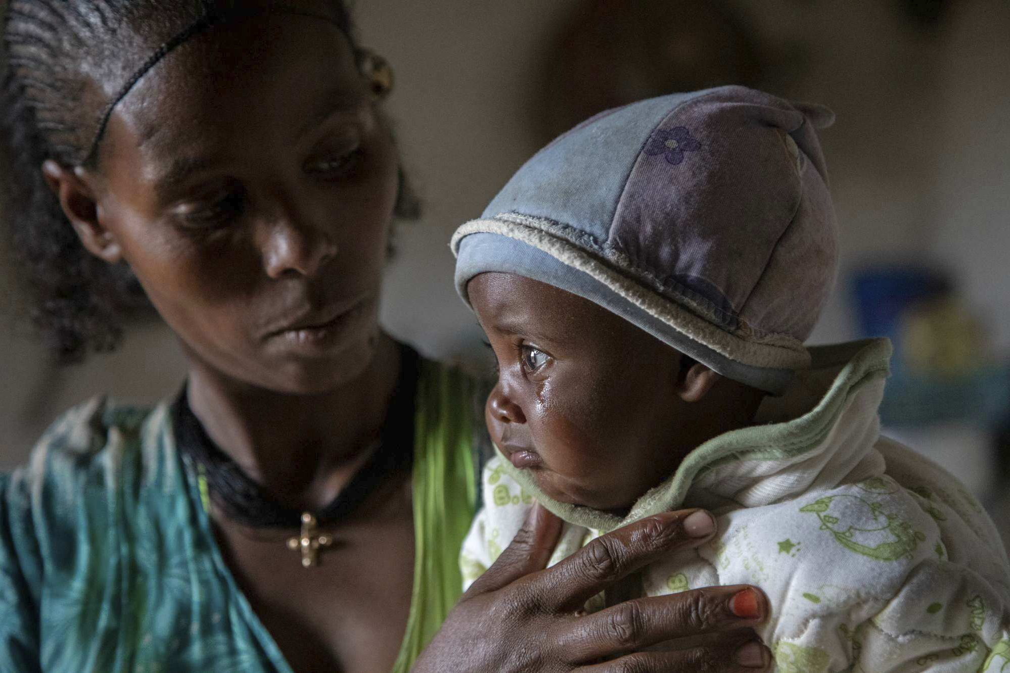 A mother and her malnourished child in Tigray, Ethiopia