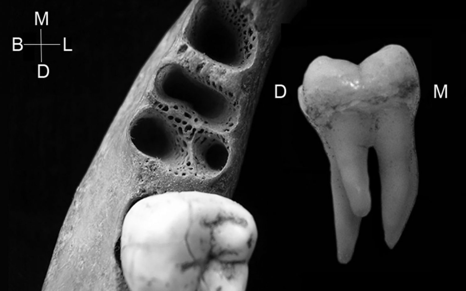 A toothache for Darwinists