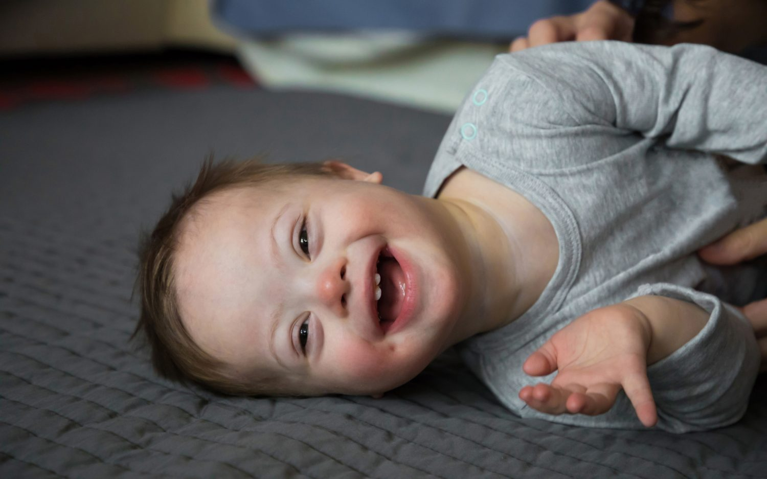 Down syndrome in the courts