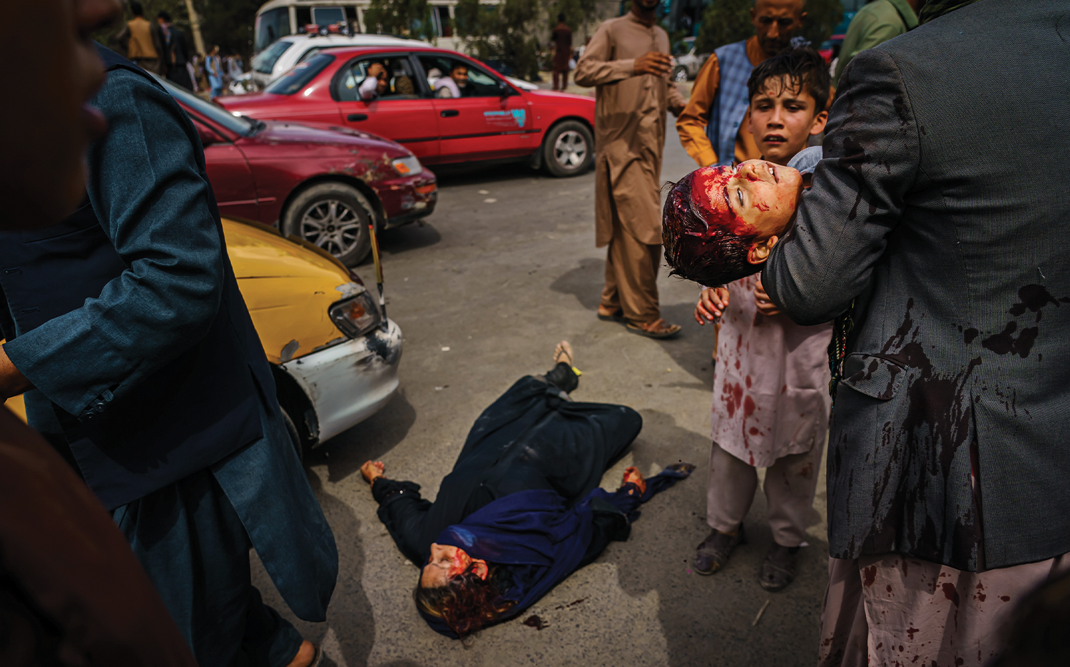 A man carries a bloodied child as a woman lies wounded on the street after Taliban fighters used gunfire, whips, sticks, and sharp objects to maintain crowd control over thousands of Afghans waiting outside the Kabul airport on Aug. 17.
